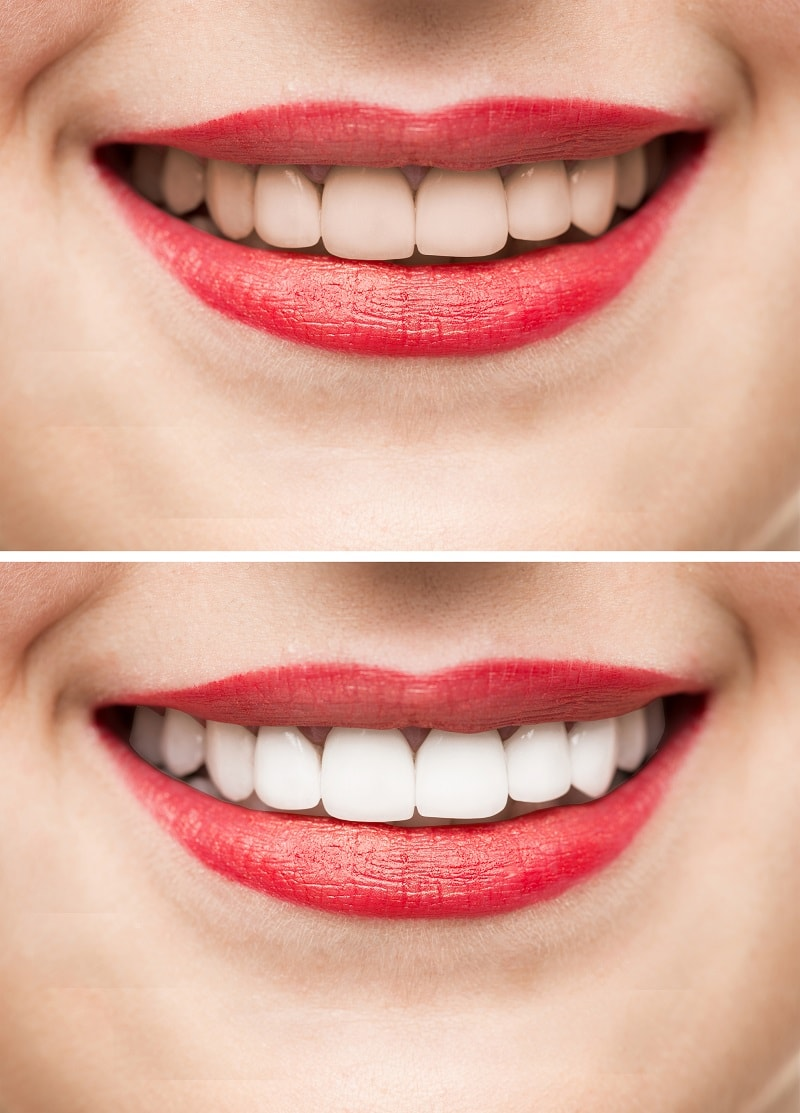 Teeth Whitening before and after treatment