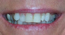 Before cosmetic dentist treatment