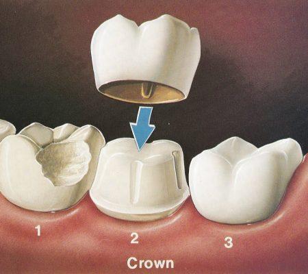 Crown Procedure Albuquerque