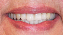 After cosmetic dentist treatment