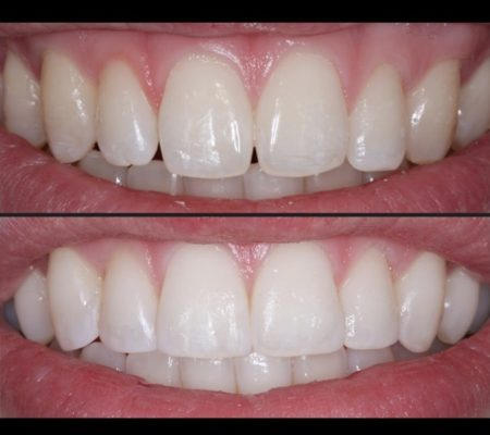 Composite bonding before and after treatment
