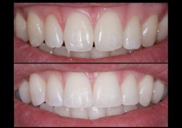 Composite Tooth Bonding Albuquerque