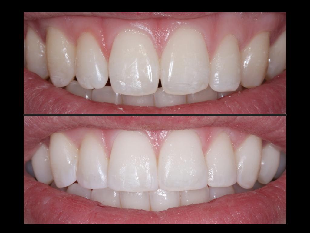 Composite Tooth Bonding Albuquerque