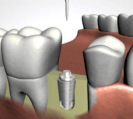 Dental Implants Albuquerque