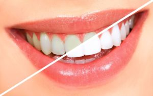 5 Things to Learn About Teeth Whitening Procedure