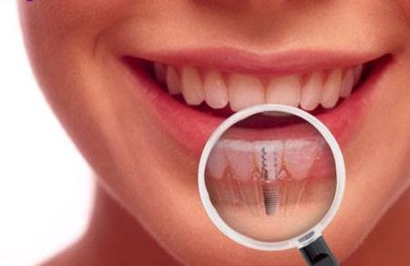 Dental Implants – Your Key to a Perfect and Healthy Smile