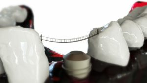 Types of Dental Implants‎ and Restorations