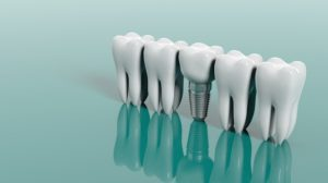 The Importance of Replacing Missing Teeth