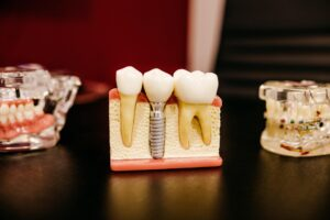 Show Off Your Smile With Dental Implants!