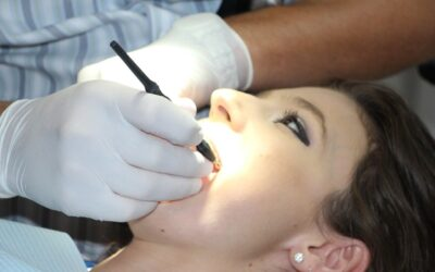 5 Popular Questions on Dental Implants Answered
