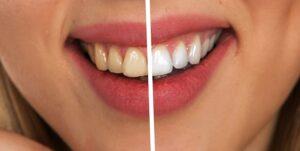 Teeth whitening in Albuquerque